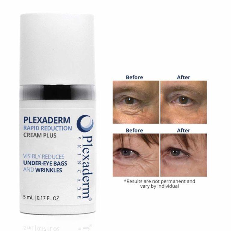 Plexaderm results